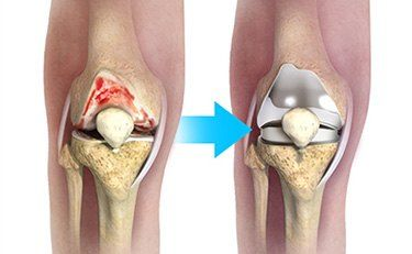 knee joint replacemnt